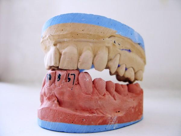 DentalMouldTeeth-MFileXpistwv